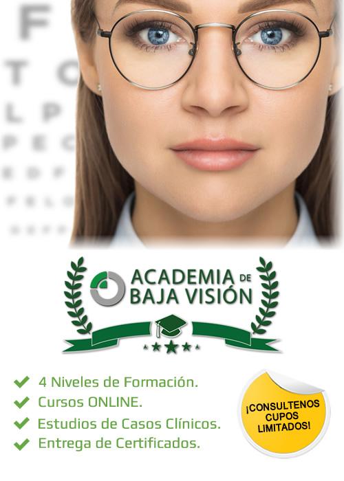 Academia de Baja Visión - Kibovisión
