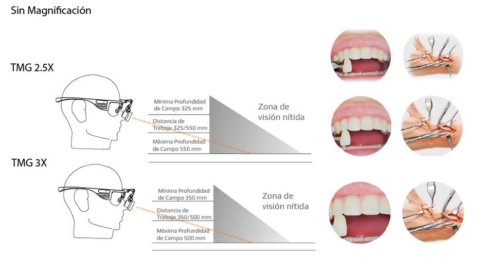 Magnificación Lupas Binoculares - Kibovision